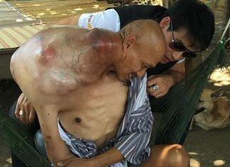 Tumor Seberat 10 kg Bersarang di Punggung Pria Thailand