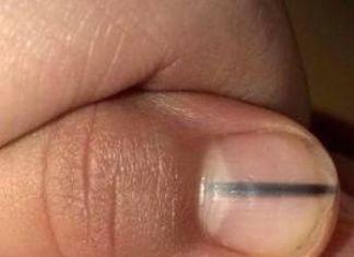 Dark Stripe On Nail Sign Of Skin Cancer