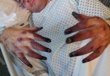Ngeri, Jari Tangan dan Kaki Pria Ini Gosong Karena Gangguan Kesehatan