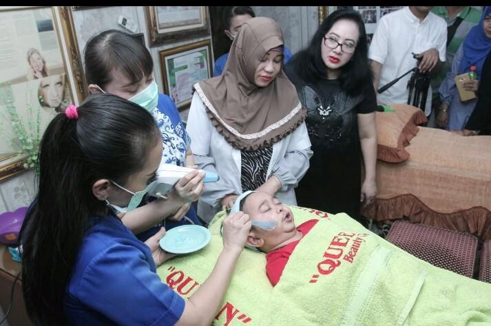 Daus Mini perawatan di Queen Beauty Clinic