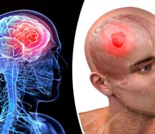 Kenali Penyebab dan Faktor Risiko Kanker yang Diidap Agung Hercules