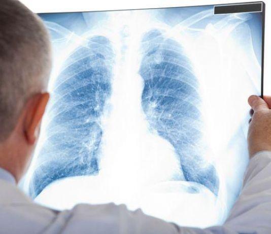 Kenali dan Waspadai Pneumonia di Sekitar Anda